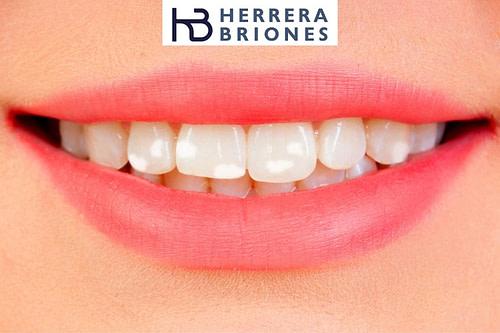 Manchas dentales blancas